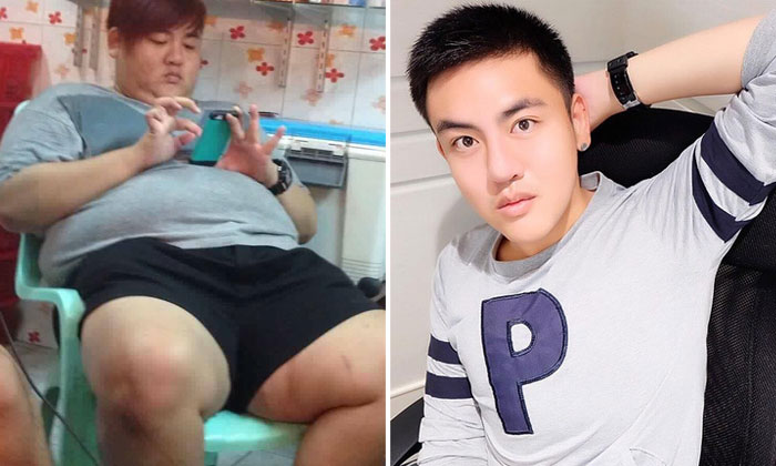 For real? Thai guy's photos before and after plastic surgery will shock you