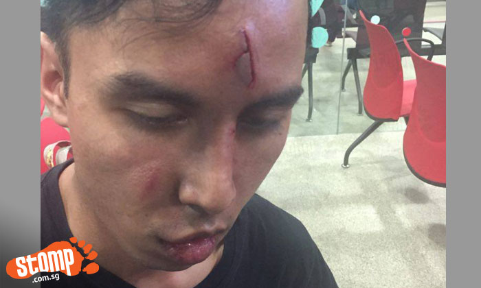 Pedestrian appealing for videos and witnesses after car accident with driver in army uniform at CCK North