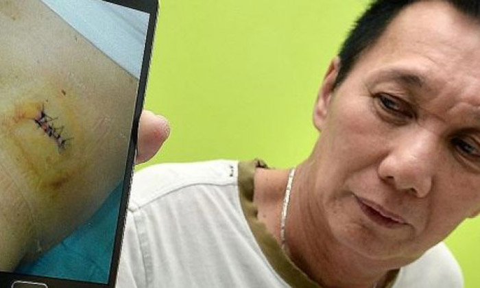 Man gets stabbed for threatening to report smoker at Choa Chu Kang coffeeshop to police