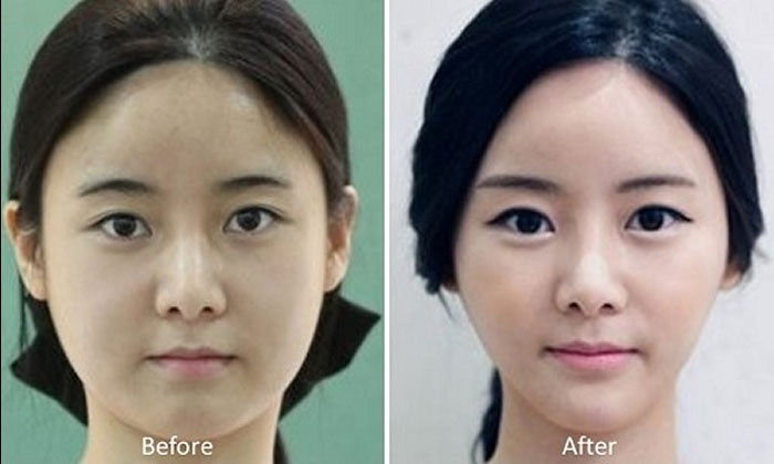 81 photos of plastic surgery in Korea that will make your jaw drop