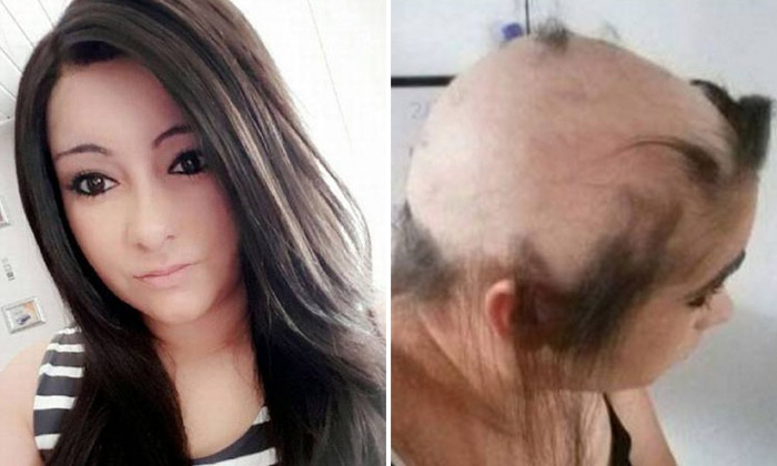 Girl suffers so much stress in 'toxic' relationship she almost loses all her hair