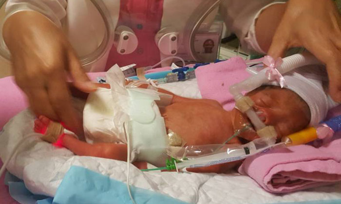 Vietnamese couple appeals for donation to cover high medical costs for premature baby born in S'pore