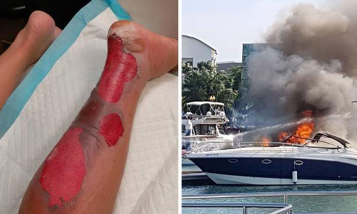 Mr Tu suffered second-degree burns on his left ankle (left) during the yacht fire (right)
