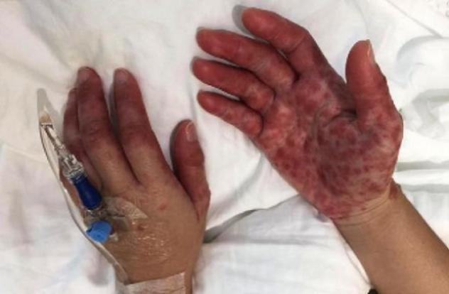 hand and feet peeling in adults