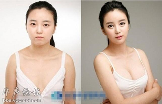 boob job Korean