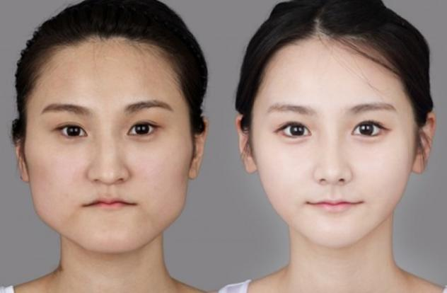 plastic surgeries a way to become more beautiful The ability to improve physical appearance though plastic or cosmetic surgery has become another way in which individuals can measure success through purchase power according to a study on the public's understanding of plastic, cosmetic or reconstructive surgery, the public views these terms differently in relation to the type of procedures.