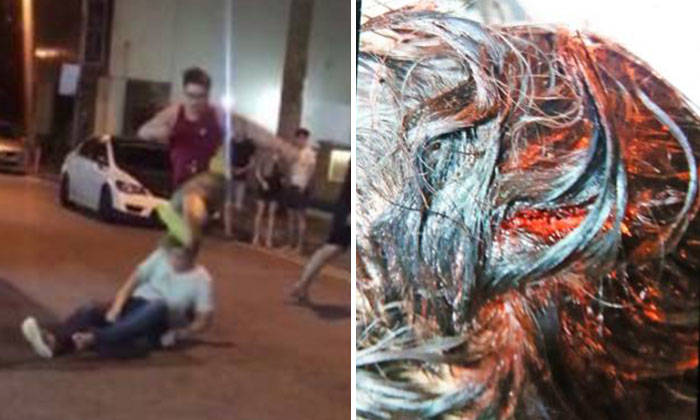 The victim was left with a 10cm-long wound (right) on his head after getting attacked. Photo: Shin Min Daily News