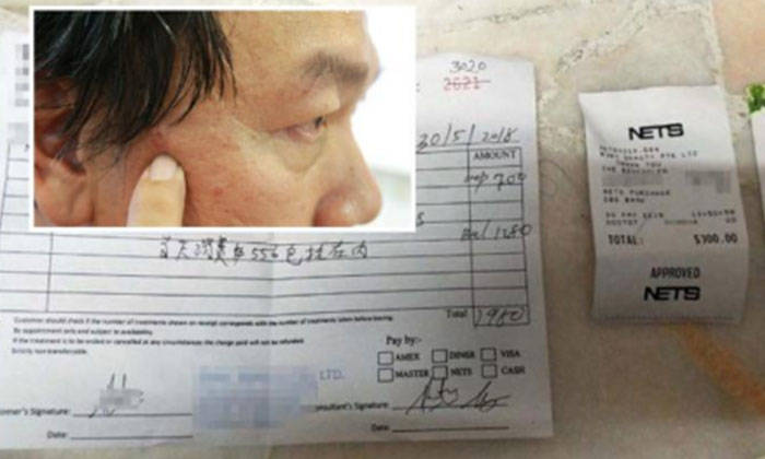 Mr Hong said he only wanted to remove two moles, but was pressured into signing up for a $1,980 package. PHOTO: LIANHE WANBAO