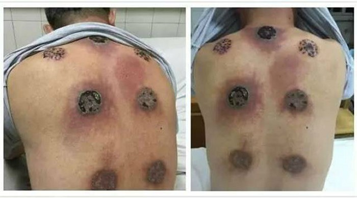 See what happens when you undergo cupping therapy every day for a month