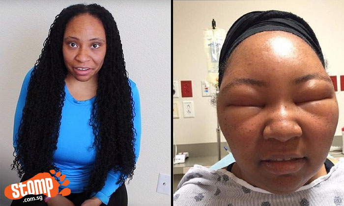 Woman horrified by what happens to her face after getting hair dyed at salon