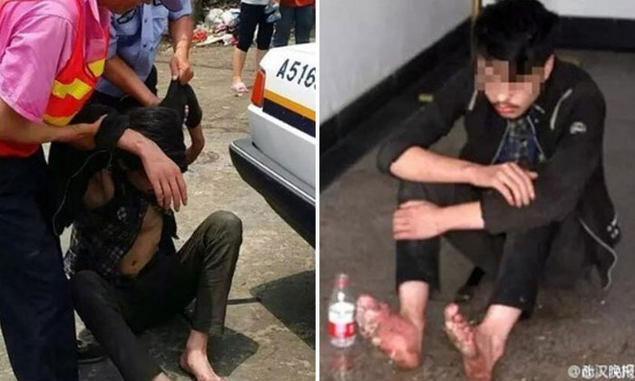 19-year-old's feet rot after 6-day gaming marathon in China