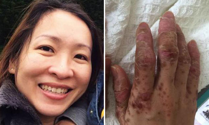 S'pore mum loses fingernails, toenails and hair after contracting HFMD