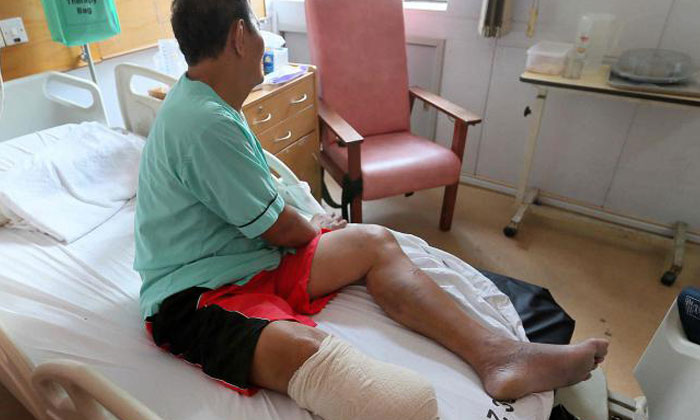 """66-year-old E-bike rider loses part of leg after accident with car: """"My right foot looked like minced meat."""""""