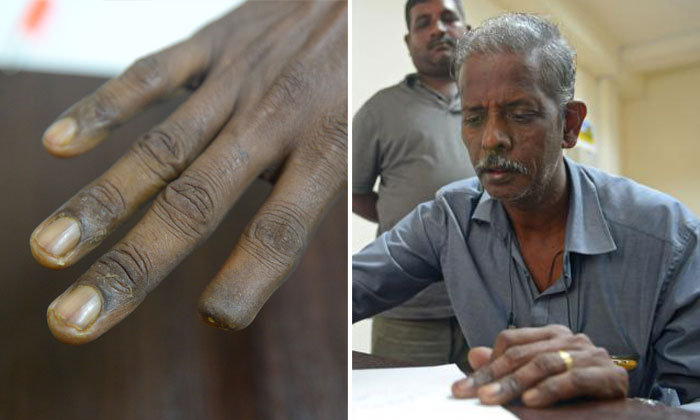 Worker whose fingers were crushed by falling metal gets just 1 day of medical leave