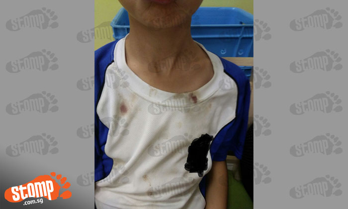 Man kicks soccer ball repeatedly at boy till his nose bleeds after he accidentally hits his daughter