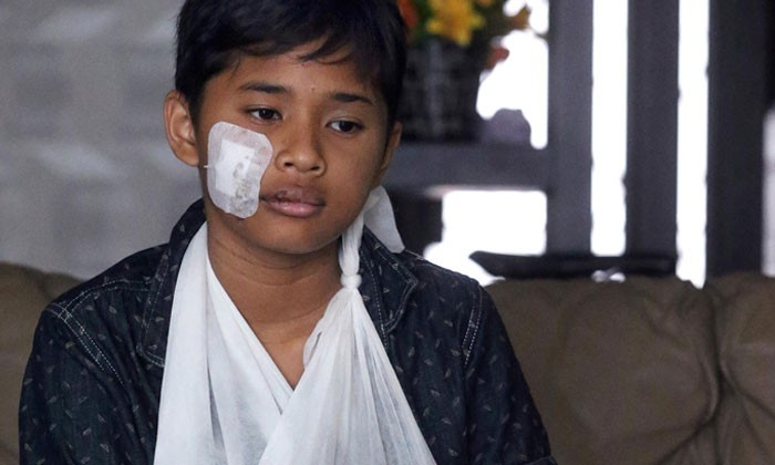 Boy fractured arm in hit-and-run accident, forced to miss 2 PSLE papers