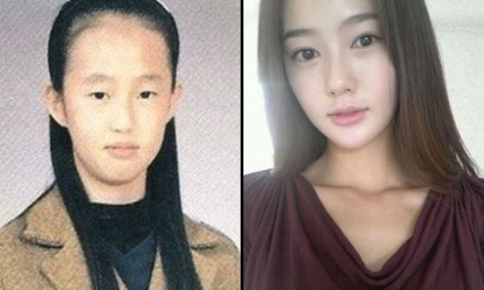 31 dramatic photos that show how plastic surgery can turn you from nobody to somebody