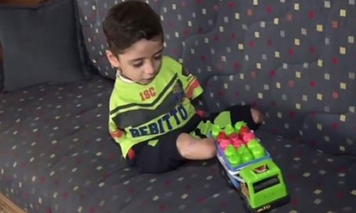 6-year-old Syrian boy was born without arms -- and loses legs from mine explosion