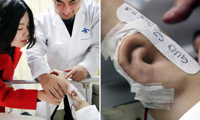 Chinese man grows new ear on arm for transplant