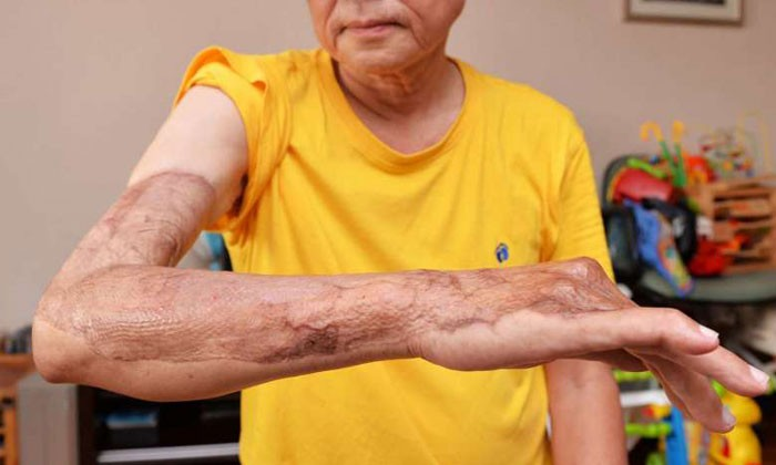 Man, 68, undergoes 7 operations after contracting flesh-eating disease following Taiwan trip