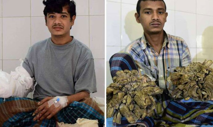 Bangladeshi man Abul Bajandar in a ward at The Dhaka Medical College Hospital in Dhaka, on Jan 4, 2017 (left), and Jan 31, 2016 (right).Photo by AFP