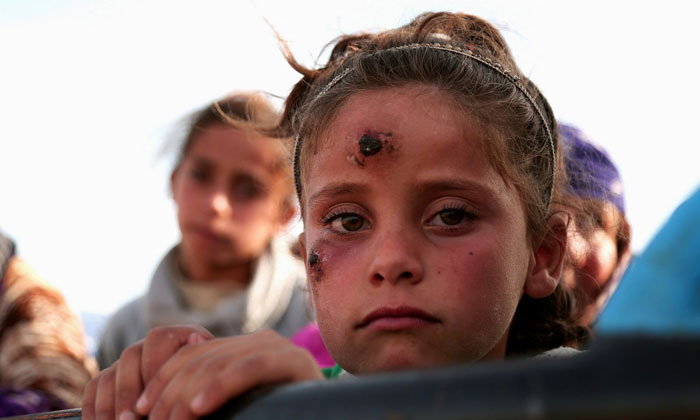 A girl, who according to her parents is showing symptoms of Leishmaniasis, returns with others to their town of Hisha, after the Syrian Democratic Forces took control of the area from Islamic State militants. Photo: Reuters