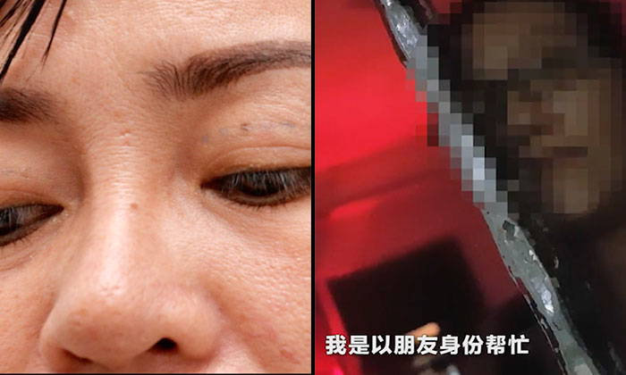 Vietnamese woman experiences swollen eyes after double