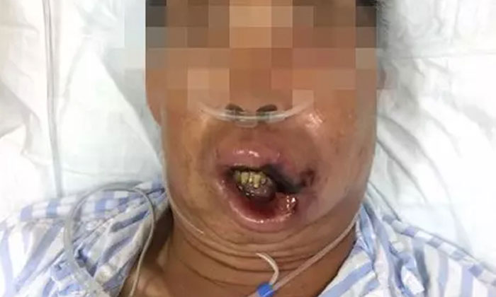 A doctor who treated the man said the area near the corner of his upper lip had turned black which signaled the tissue there had died. Photo: Weibo