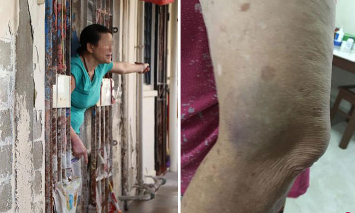 The elderly woman (left) allegedly swung a pail at her neighbour, injuring her left arm (right).