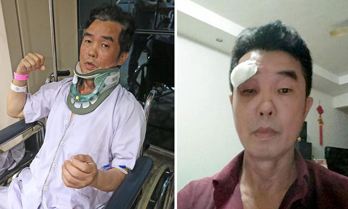 Mr Chen said that at one point, he could not open his right eye fully as it was so swollen after the assault. Photo: Shin Min Daily News