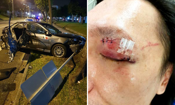A chain collision caused Mr Michael Ng's car to hit a tree and road sign. Mr Ng (right) suffered cuts on his eyelid and forehead. Photos: Michael Ng / Facebook, Lianhe Wanbao
