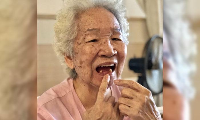 Madam Chen Shu Diao showing reporters her surgical wounds. PHOTO: SHIN MIN DAILY NEWS