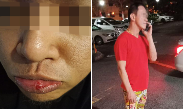 Valet driver Fairuz (left) was punched by a customer (right) along Oxley Road on Aug 12. Photos: Drive Home Service Singapore / Facebook