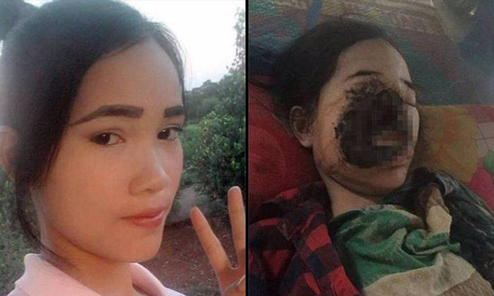 Cambodian Girl S Face Destroyed By Flesh Eating Bacteria