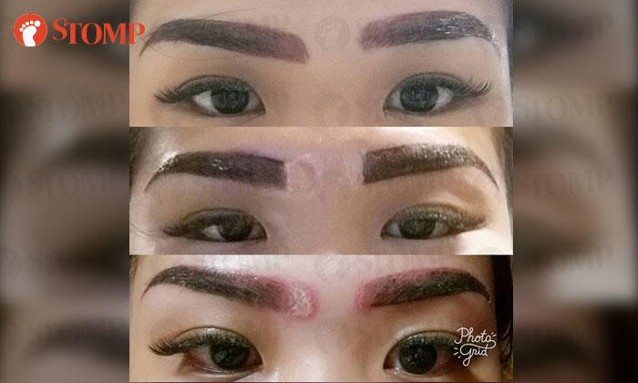 Woman Disfigured After Going For Home Based Eyebrow Embroidery