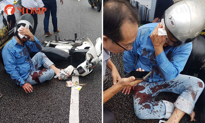 Blood Streams From Rider S Face After Accident With Car And Taxi
