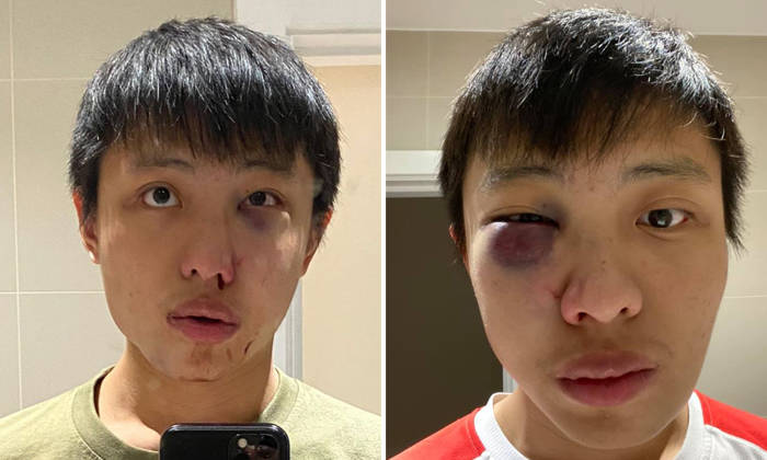 Singaporean Student Gets Attacked In London In Coronavirus-Related Hate Crime