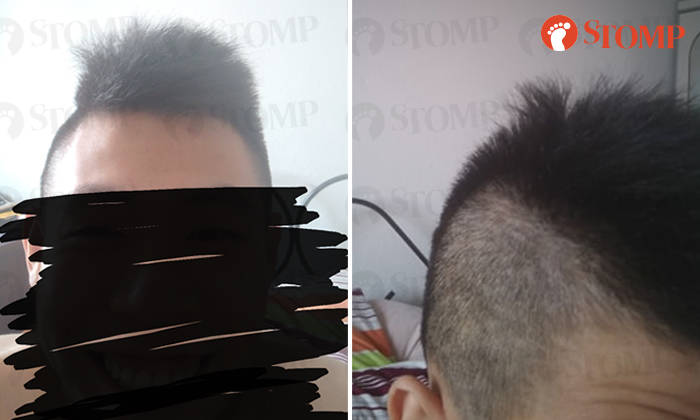 Guy Ends Up With Uneven Hair After Visiting Woodlands Salon Told It Will Grow Back