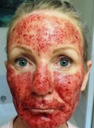 Australian Woman Has Blood Oozing From Her Face And