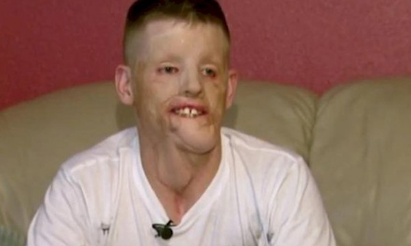 Man undergoes amazing transformation after getting disfigured by severe electric shock