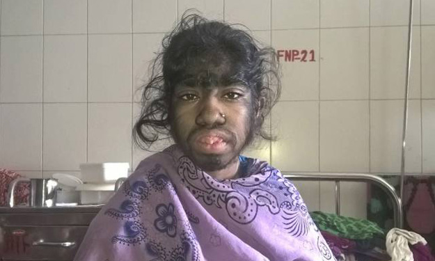 'Werewolf' Bangladeshi girl seeks help for rare excess hair condition for chance at normal life